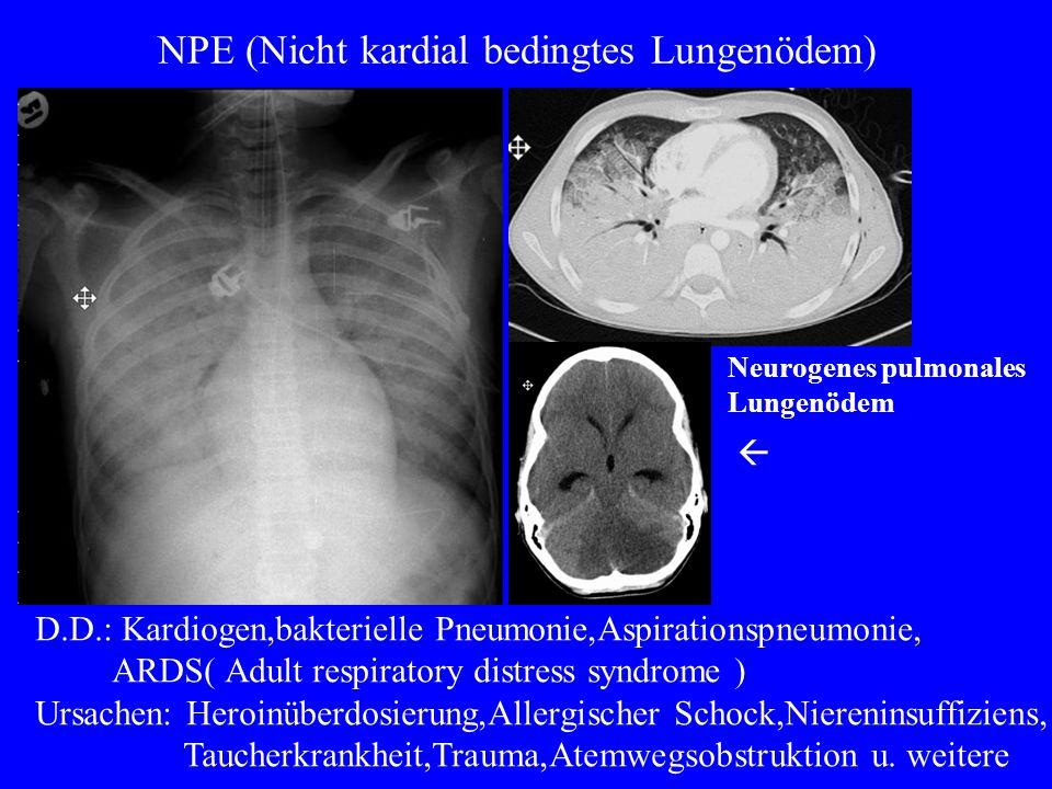 Opportunistische Pneumonien Primärtuberkulose