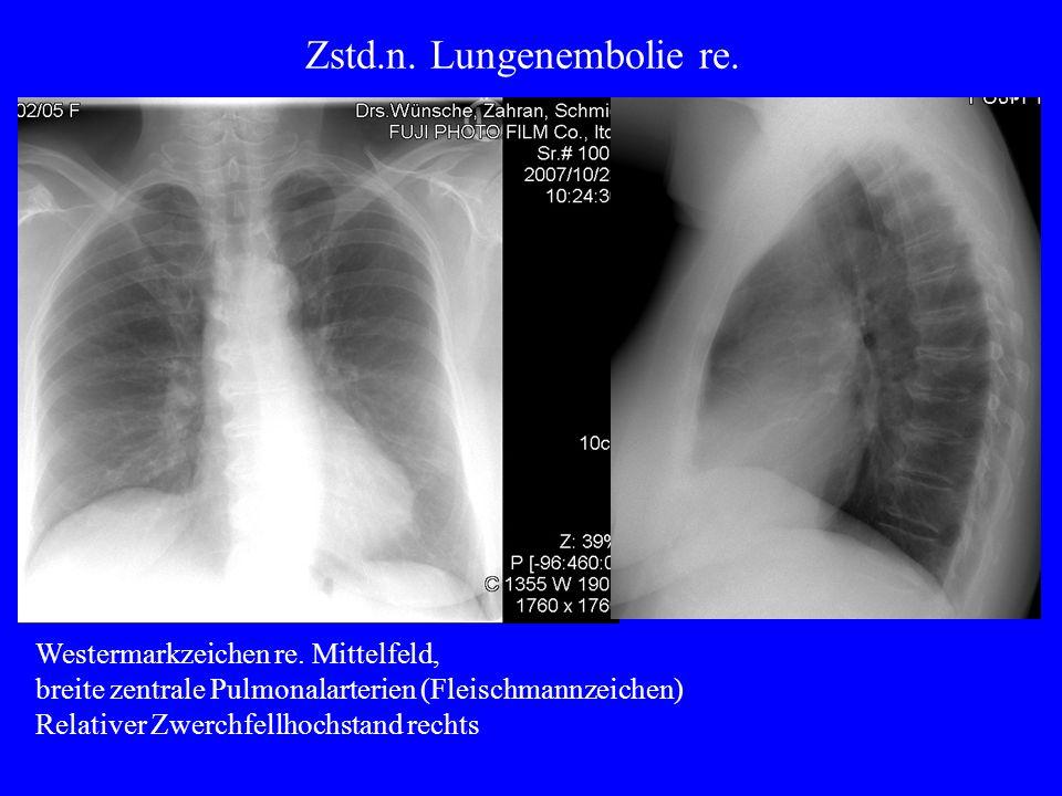 Miliare Tuberkulose unter Therapie mit Tumor-Nekrose-Faktor-Blocker Primärkomplex nach alter TBC links.