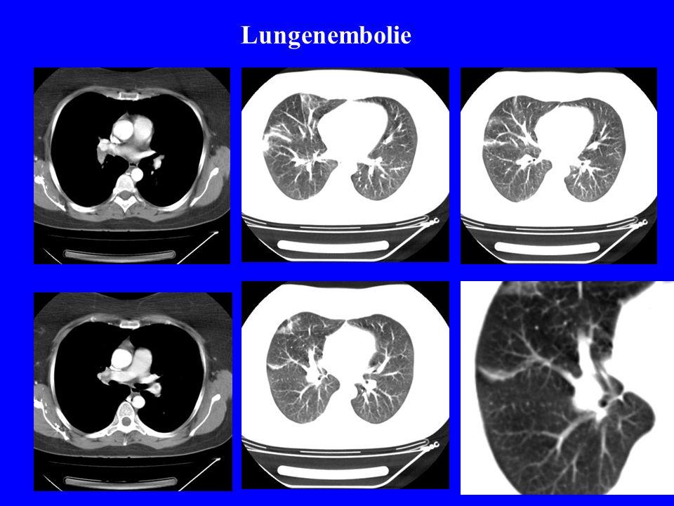 Lungenembolie Perfusions-Inhalationsszintigramm