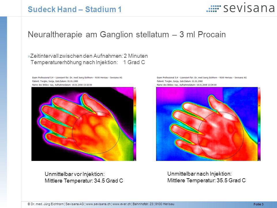 © Dr. med. Jürg Eichhorn ¦ Sevisana AG ¦ www.sevisana.ch ¦ www.ever.ch ¦ Bahnhofstr. 23 ¦ 9100 Herisau Folie 3 Sudeck Hand – Stadium 1 Neuraltherapie