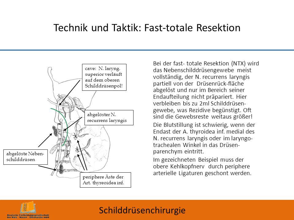 Technik und Taktik: Fast-totale Resektion Bei der fast- totale Resektion (NTX) wird das Nebenschilddrüsengewebe meist vollständig, der N. recurrens la