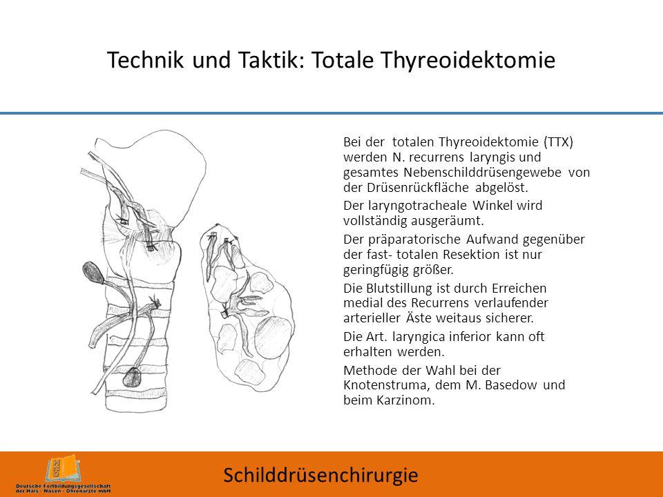 Technik und Taktik: Totale Thyreoidektomie Schilddrüsenchirurgie Bei der totalen Thyreoidektomie (TTX) werden N. recurrens laryngis und gesamtes Neben