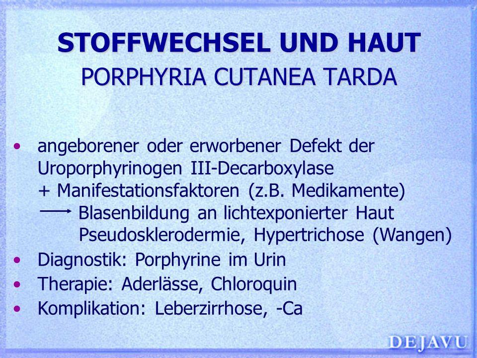 STOFFWECHSEL UND HAUT PORPHYRIA CUTANEA TARDA angeborener oder erworbener Defekt der Uroporphyrinogen III-Decarboxylase + Manifestationsfaktoren (z.B.