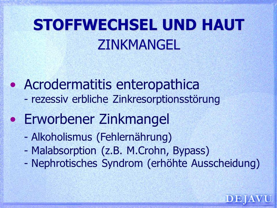 STOFFWECHSEL UND HAUT ZINKMANGEL Acrodermatitis enteropathica - rezessiv erbliche Zinkresorptionsstörung Erworbener Zinkmangel - Alkoholismus (Fehlern