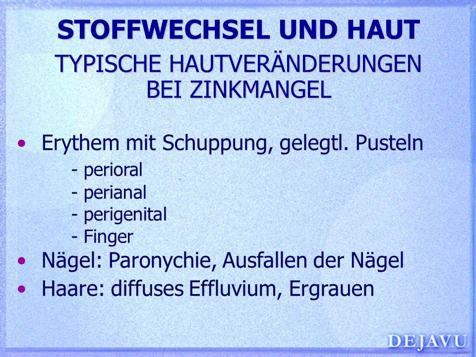 STOFFWECHSEL UND HAUT TYPISCHE HAUTVERÄNDERUNGEN BEI ZINKMANGEL Erythem mit Schuppung, gelegtl. Pusteln - perioral - perianal - perigenital - Finger N