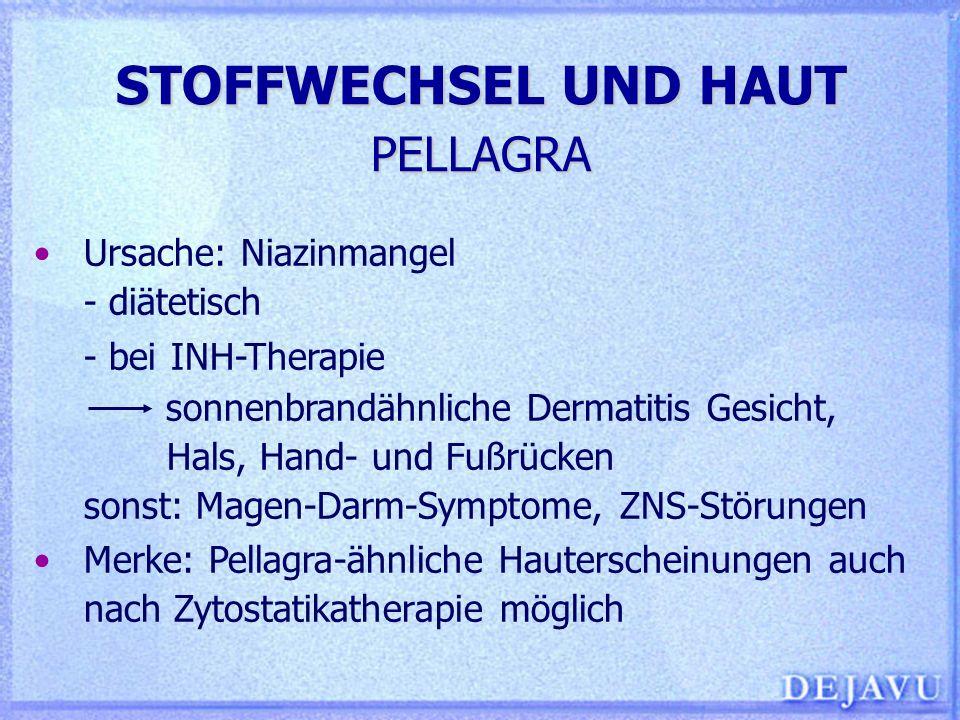 STOFFWECHSEL UND HAUT PELLAGRA Ursache: Niazinmangel - diätetisch - bei INH-Therapie sonnenbrandähnliche Dermatitis Gesicht, Hals, Hand- und Fußrücken
