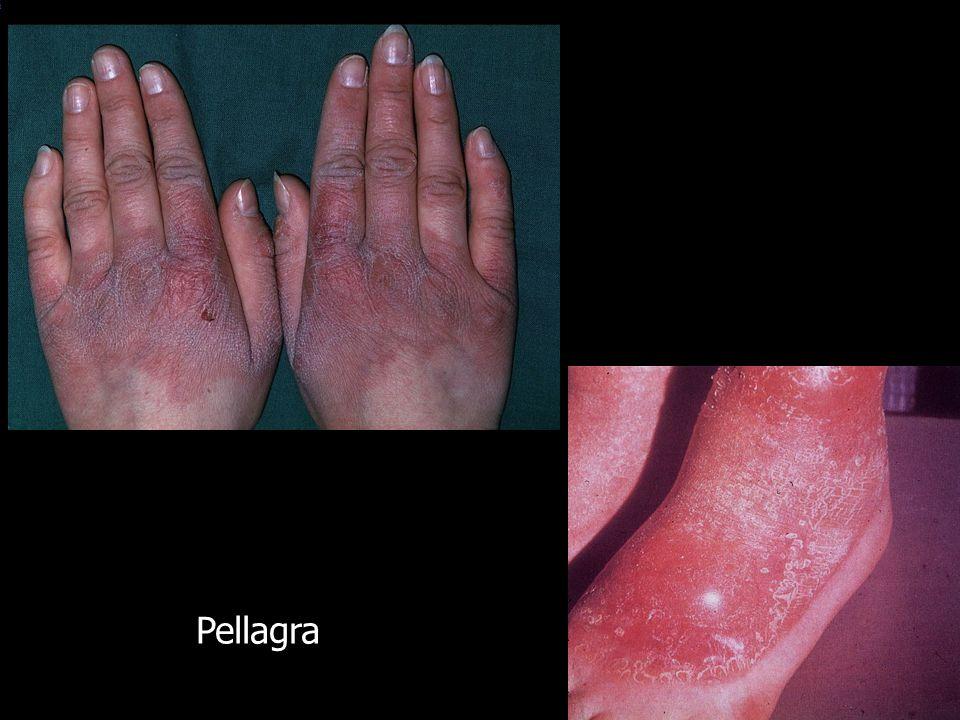 STOFFWECHSEL UND HAUT PORPHYRIEN Porphyria cutanea tarda Porphyria variegata Erythropoetische Protoporphyrie congenitale erythropoetische Protoporphyrie