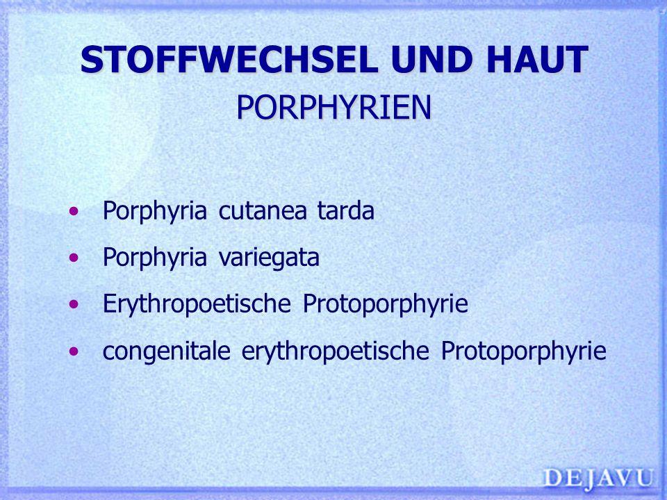 STOFFWECHSEL UND HAUT PORPHYRIEN Porphyria cutanea tarda Porphyria variegata Erythropoetische Protoporphyrie congenitale erythropoetische Protoporphyr