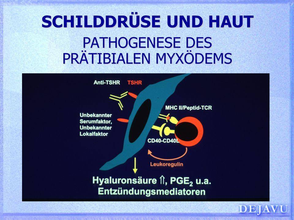 SCHILDDRÜSE UND HAUT PATHOGENESE DES PRÄTIBIALEN MYXÖDEMS