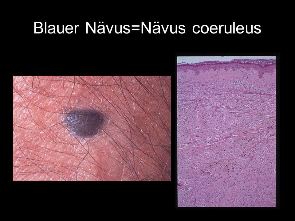 Blauer Nävus=Nävus coeruleus