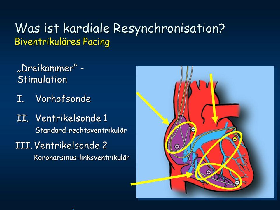 Dreikammer - Stimulation. I.Vorhofsonde II.Ventrikelsonde 1 Standard-rechtsventrikulär III.Ventrikelsonde 2 Koronarsinus-linksventrikulär Was ist kard