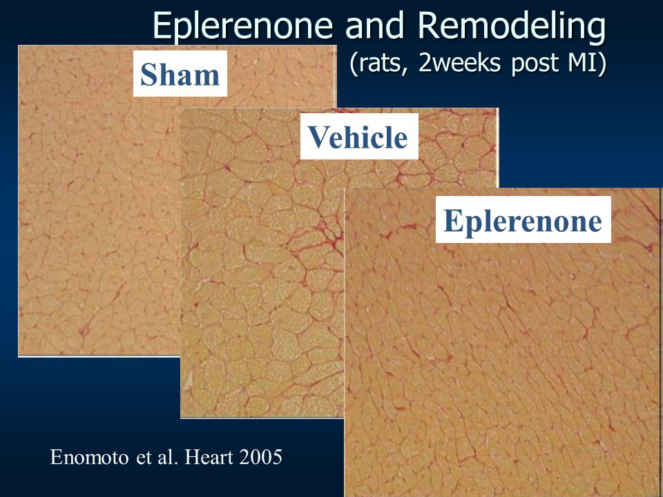 Eplerenone and Remodeling (rats, 2weeks post MI) Sham Vehicle Enomoto et al. Heart 2005 Eplerenone