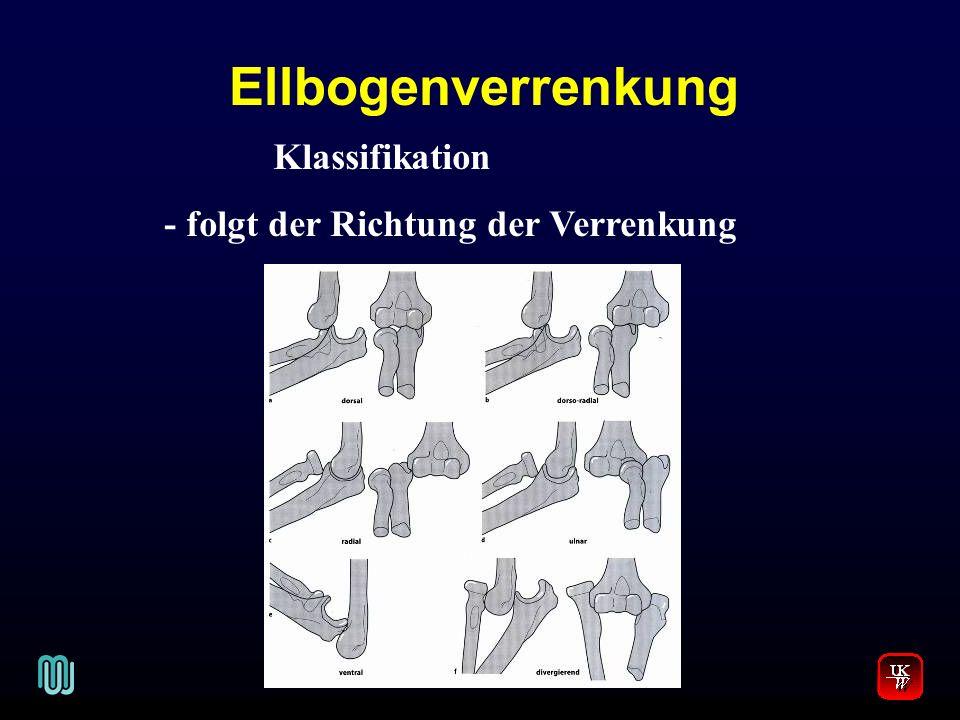 Ellbogenverrenkung V. Klassifikation - folgt der Richtung der Verrenkung