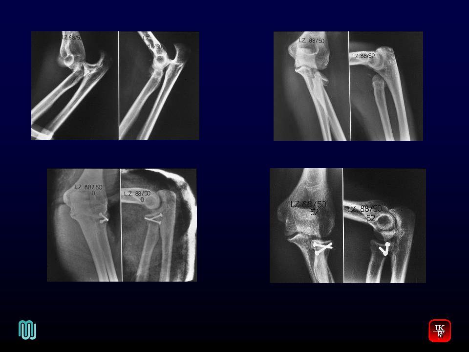 Ellbogenverrenkung V.Diagnose -Typisches klinisches Bild (Blickdiagnose) -Röntgen, bzw.