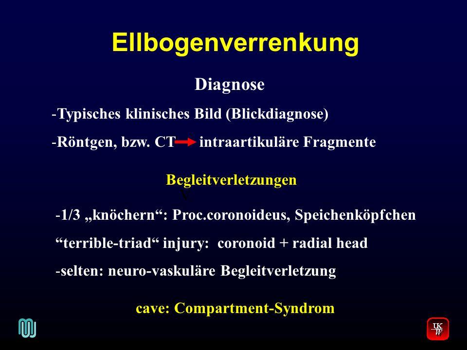 Ellbogenverrenkung V. Diagnose -Typisches klinisches Bild (Blickdiagnose) -Röntgen, bzw. CT intraartikuläre Fragmente Begleitverletzungen -1/3 knöcher