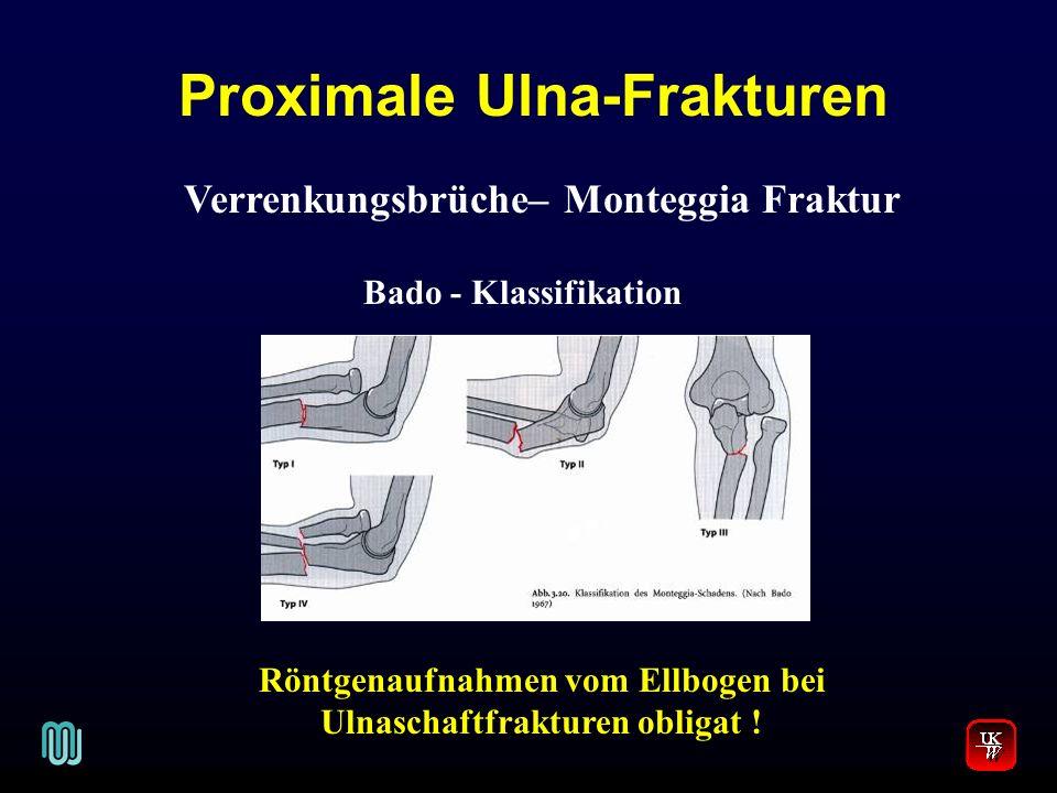 Proximale Ulna-Frakturen V. Verrenkungsbrüche– Monteggia Fraktur Bado - Klassifikation Röntgenaufnahmen vom Ellbogen bei Ulnaschaftfrakturen obligat !