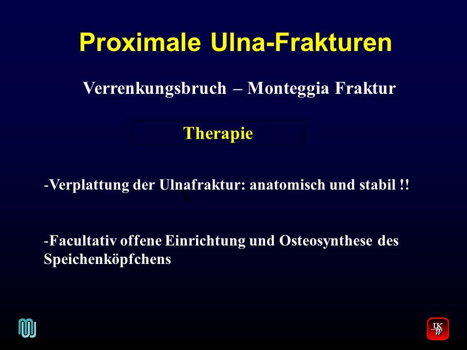 Proximale Ulna-Frakturen V. Verrenkungsbruch – Monteggia Fraktur -Verplattung der Ulnafraktur: anatomisch und stabil !! -Facultativ offene Einrichtung