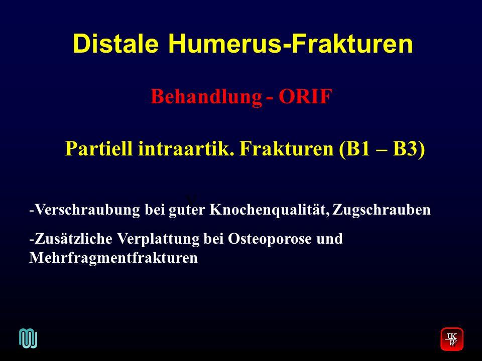 Distale Humerus-Frakturen V. Behandlung - ORIF Partiell intraartik. Frakturen (B1 – B3) -Verschraubung bei guter Knochenqualität, Zugschrauben -Zusätz