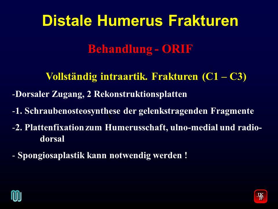 Distale Humerus Frakturen V. Behandlung - ORIF Vollständig intraartik. Frakturen (C1 – C3) -Dorsaler Zugang, 2 Rekonstruktionsplatten -1. Schraubenost