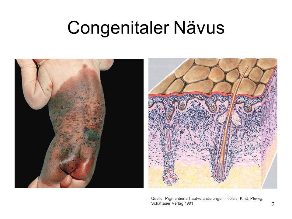 Congenitaler Nävus Quelle: Pigmentierte Hautveränderungen; Hölzle, Kind, Plewig; Schattauer Verlag 1991 2