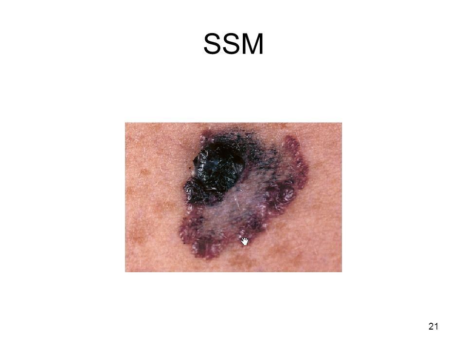 SSM 21