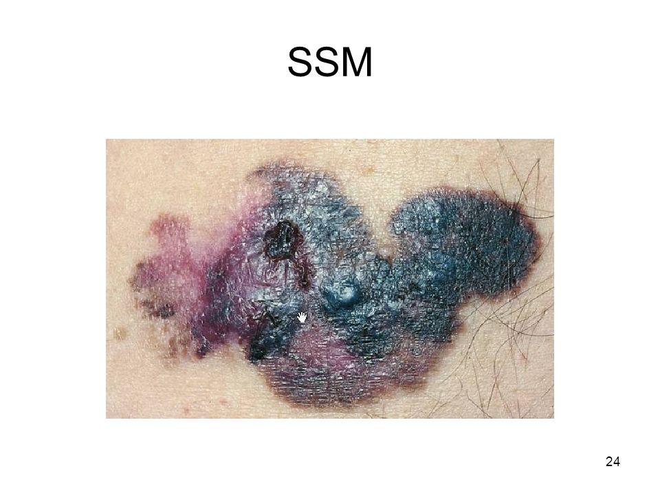 SSM 24