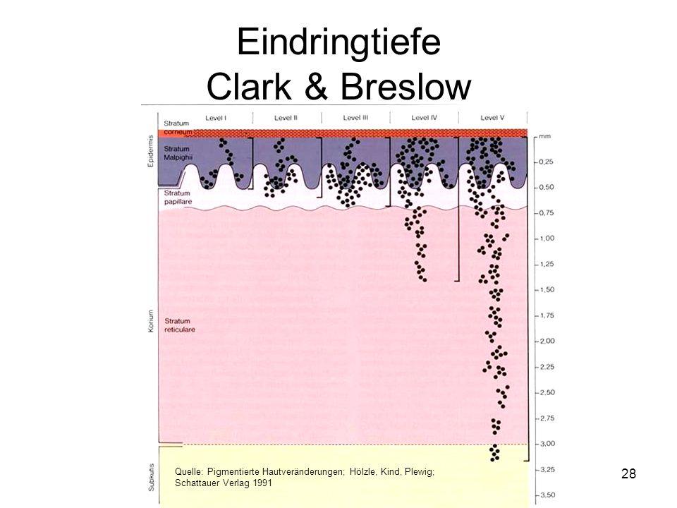 Quelle: Pigmentierte Hautveränderungen; Hölzle, Kind, Plewig; Schattauer Verlag 1991 Eindringtiefe Clark & Breslow 28