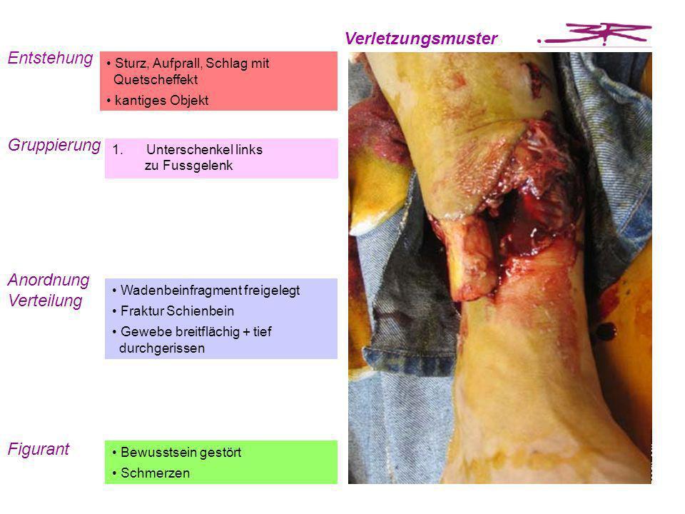 Entstehung Verletzungsmuster Gruppierung 1.Unterschenkel links zu Fussgelenk Sturz, Aufprall, Schlag mit Quetscheffekt kantiges Objekt Anordnung Verte