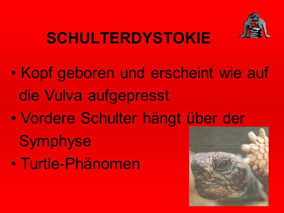 SCHULTERDYSTOKIE Kopf geboren und erscheint wie auf die Vulva aufgepresst Vordere Schulter hängt über der Symphyse Turtle-Phänomen