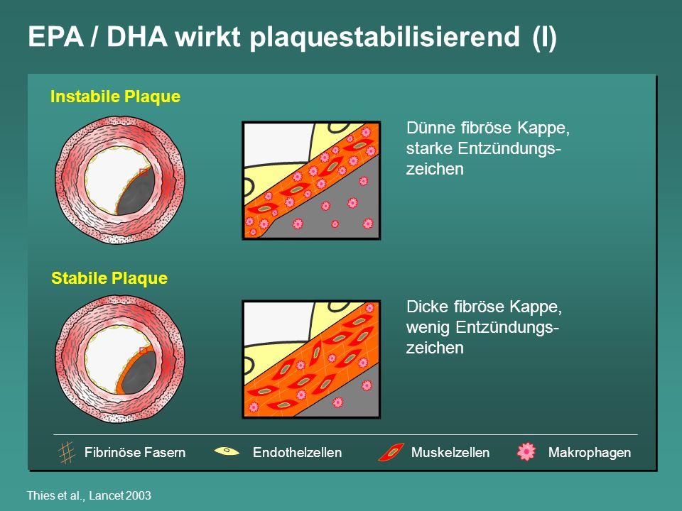 Thies et al., Lancet 2003 EPA / DHA wirkt plaquestabilisierend (I) Instabile Plaque Stabile Plaque Dünne fibröse Kappe, starke Entzündungs- zeichen Di