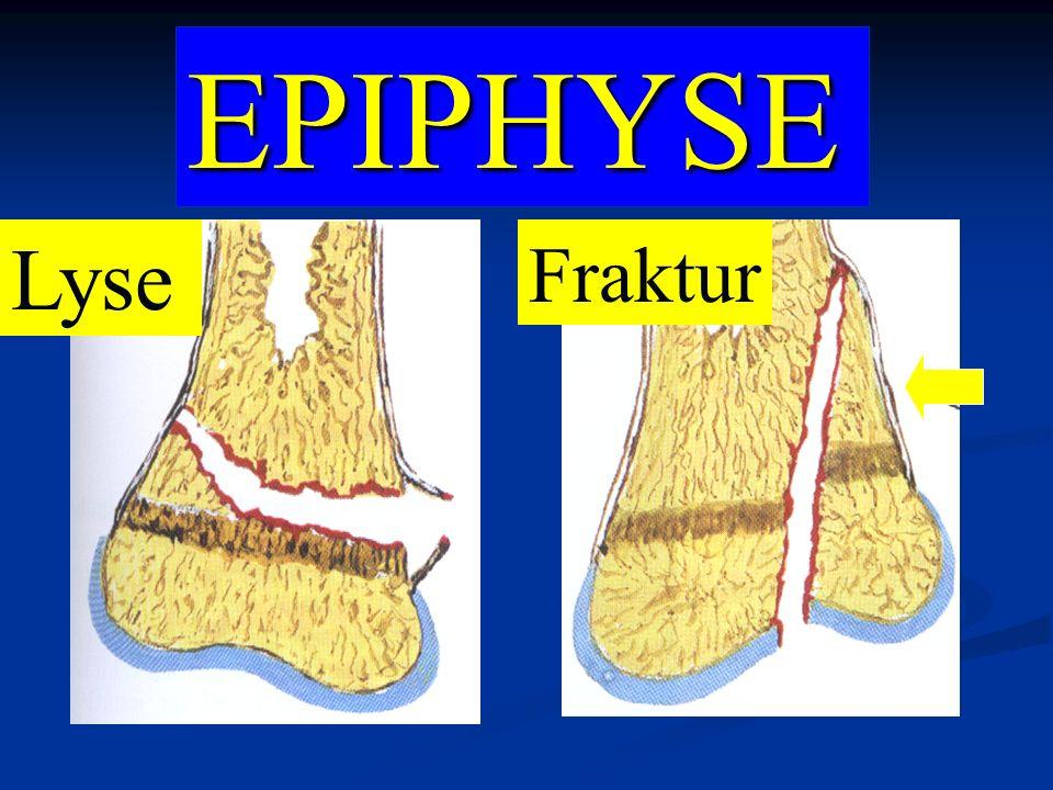 EPIPHYSE Lyse Fraktur