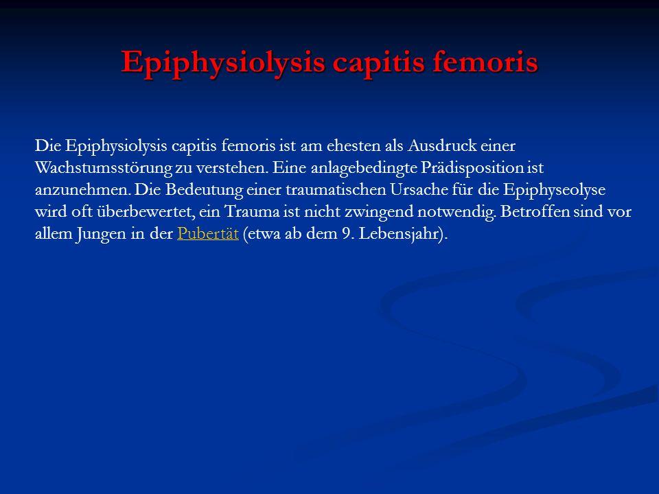 Die Epiphysiolysis capitis femoris ist am ehesten als Ausdruck einer Wachstumsstörung zu verstehen. Eine anlagebedingte Prädisposition ist anzunehmen.