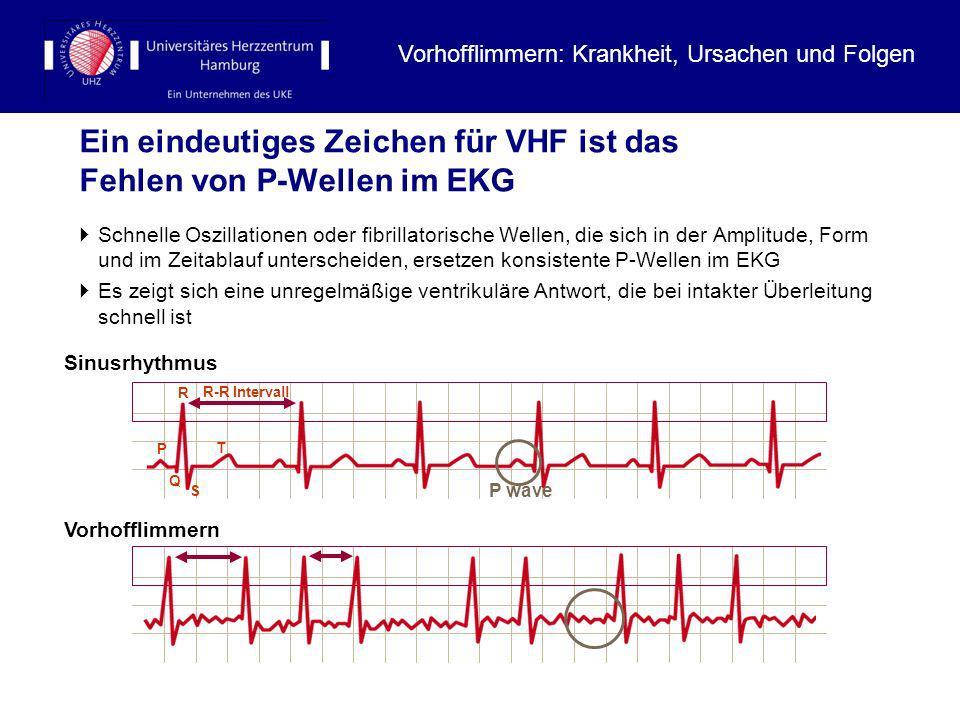 Die Kontrolle des Herzrhythmus unterliegt bei VHF nicht mehr dem Sinusknoten Normale elektrische Leitungsbahnen Abnormale elektrische Leitungsbahnen SinusrhythmusVorhofflimmern Vielfache, koexistierende kleine Wellen verursachen eine schnelle und unregelmäßige atriale Aktivität (400-600/min).