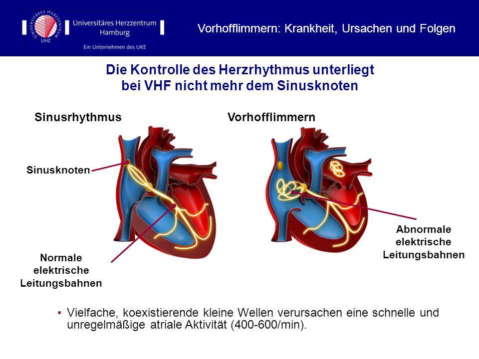 Die Kontrolle des Herzrhythmus unterliegt bei VHF nicht mehr dem Sinusknoten Normale elektrische Leitungsbahnen Abnormale elektrische Leitungsbahnen S