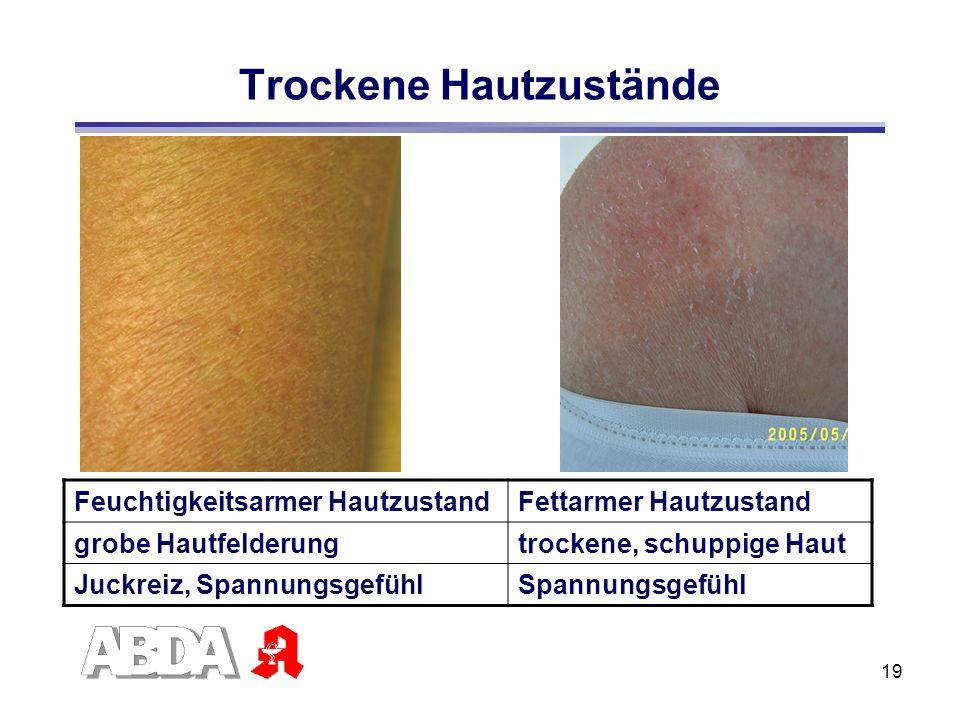 19 Trockene Hautzustände Feuchtigkeitsarmer HautzustandFettarmer Hautzustand grobe Hautfelderungtrockene, schuppige Haut Juckreiz, SpannungsgefühlSpan