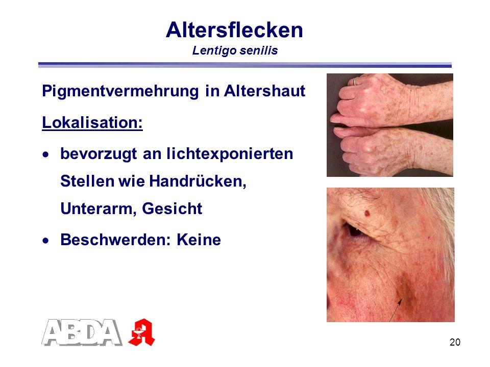 20 Altersflecken Lentigo senilis Pigmentvermehrung in Altershaut Lokalisation: bevorzugt an lichtexponierten Stellen wie Handrücken, Unterarm, Gesicht