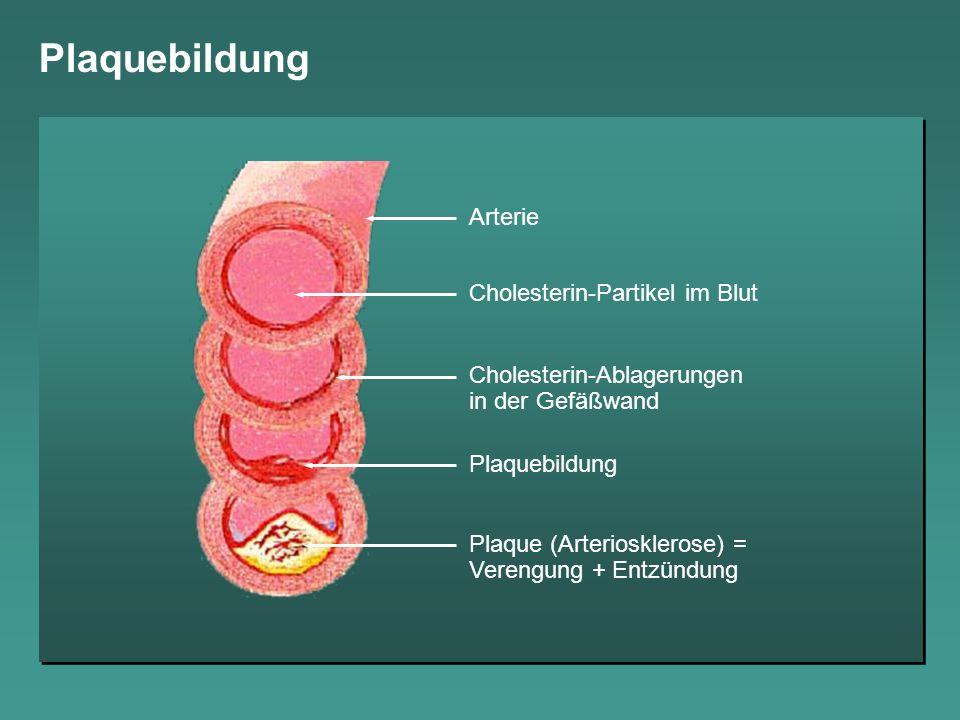 Plaquebildung Arterie Cholesterin-Partikel im Blut Cholesterin-Ablagerungen in der Gefäßwand Plaquebildung Plaque (Arteriosklerose) = Verengung + Entz