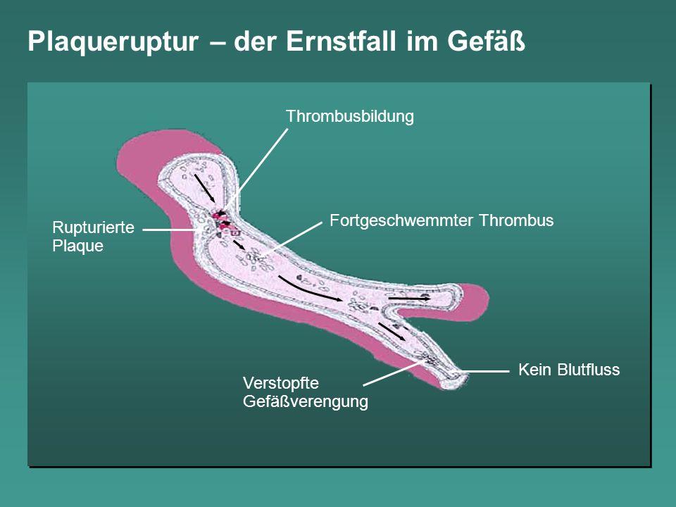 Plaqueruptur – der Ernstfall im Gefäß Thrombusbildung Fortgeschwemmter Thrombus Verstopfte Gefäßverengung Rupturierte Plaque Kein Blutfluss