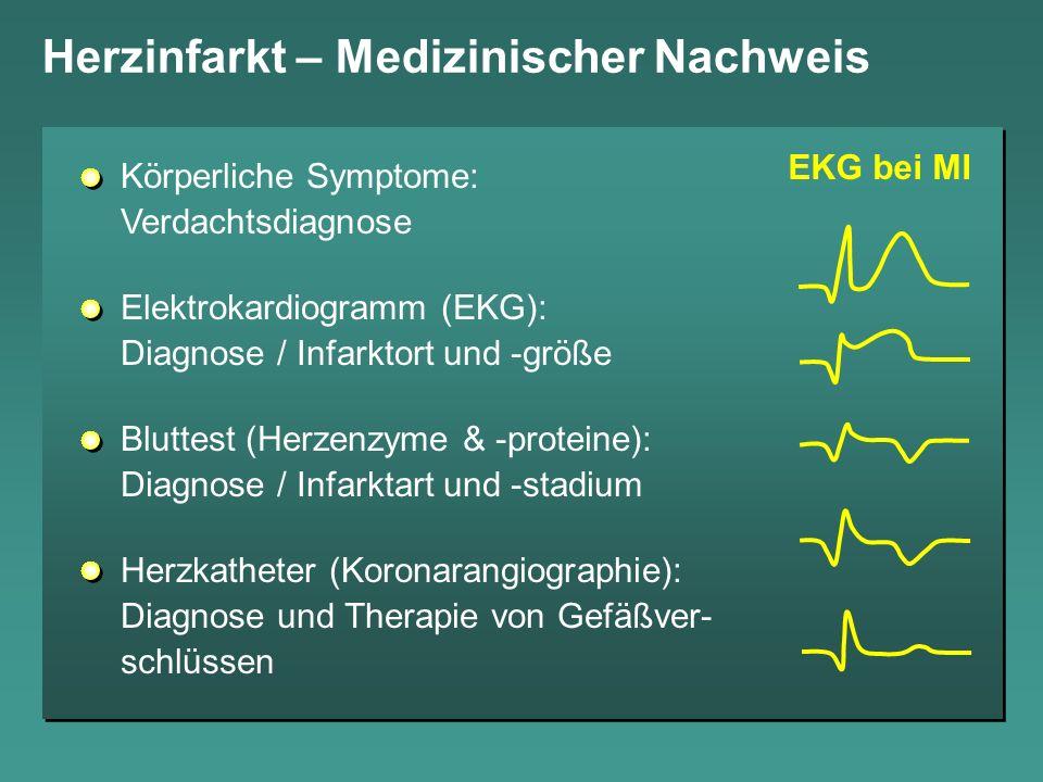 Herzinfarkt – Medizinischer Nachweis EKG bei MI Körperliche Symptome: Verdachtsdiagnose Elektrokardiogramm (EKG): Diagnose / Infarktort und -größe Blu