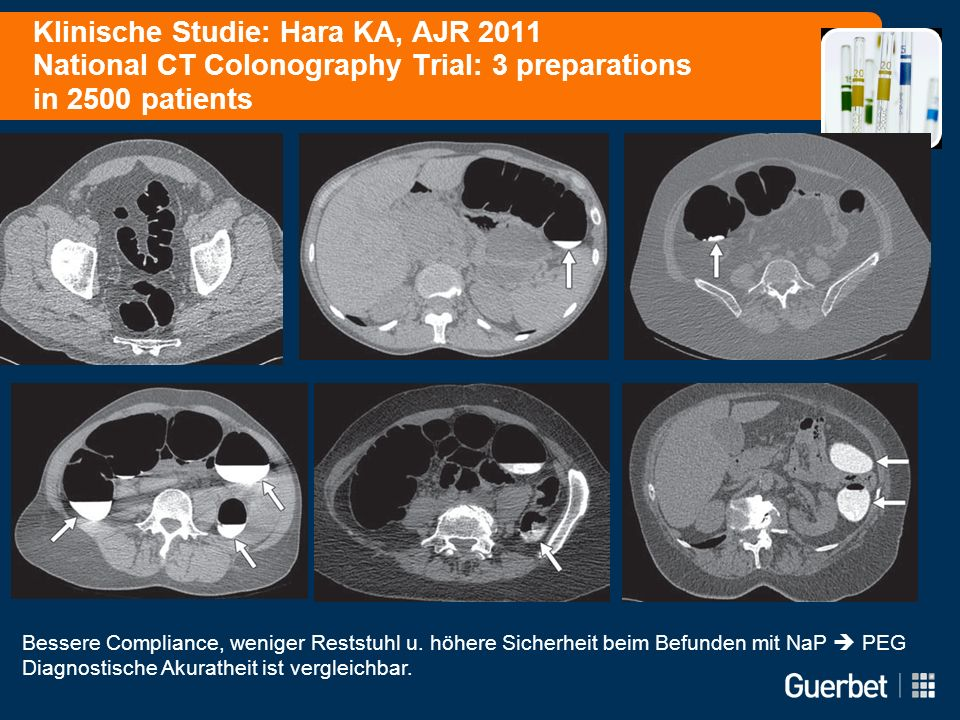 Klinische Studie: Hara KA, AJR 2011 National CT Colonography Trial: 3 preparations in 2500 patients Bessere Compliance, weniger Reststuhl u. höhere Si