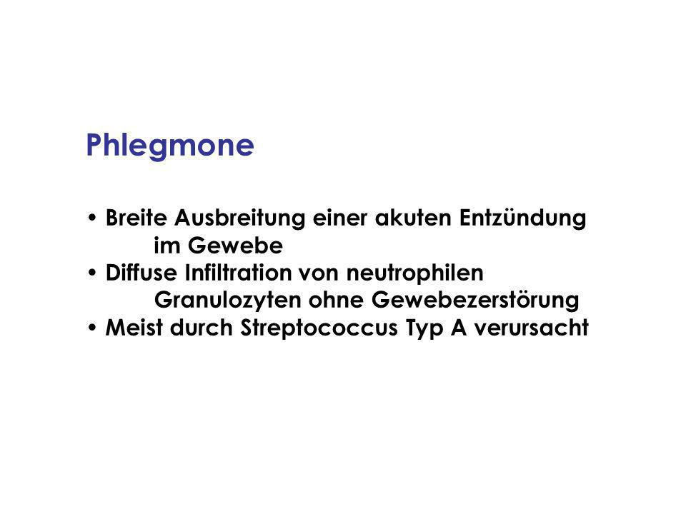 Phlegmone Breite Ausbreitung einer akuten Entzündung im Gewebe Diffuse Infiltration von neutrophilen Granulozyten ohne Gewebezerstörung Meist durch Streptococcus Typ A verursacht