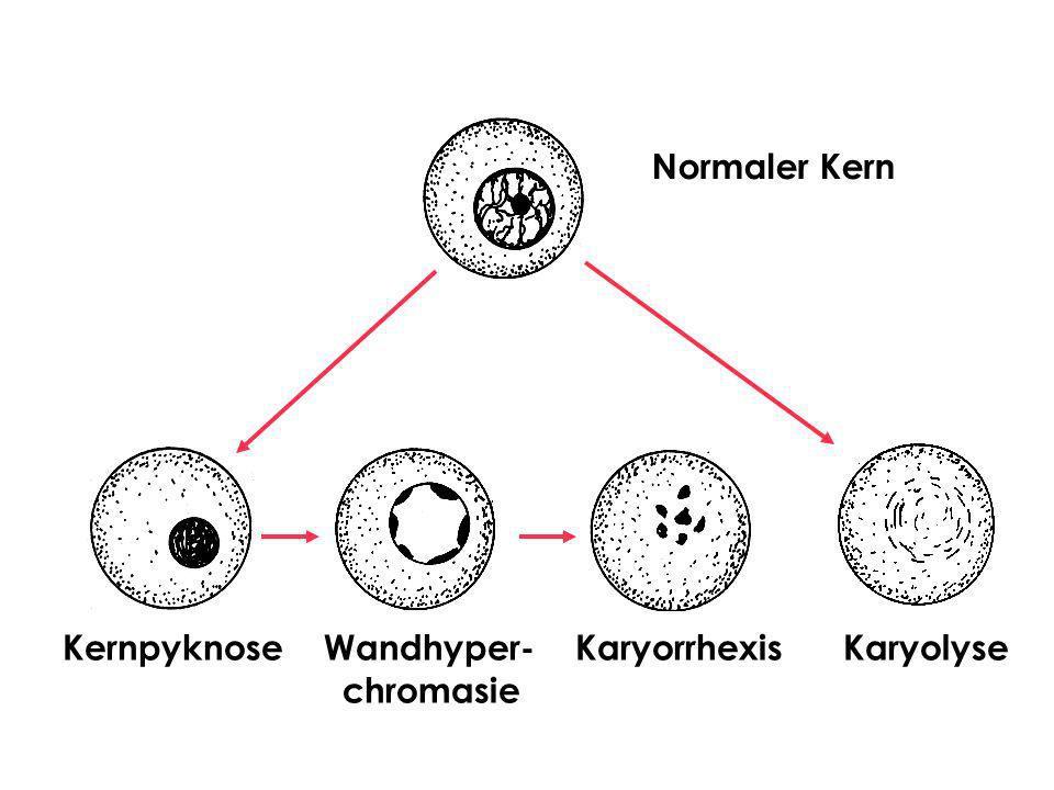 Koagulationsnekrose Besteht aus abgestorbenen Zellen, deren Proteine während des intravitalen Prozesses koaguliert sind Längere Zeit erkennbare Zell- und Gewebekonturen Der Nukleus zeigt eine Kariolyse Aufgrund der Freilegung basischer Strukturen bei der Denaturierung von Proteinen, färbt sich das Zytoplasma intensiv eosiniphil