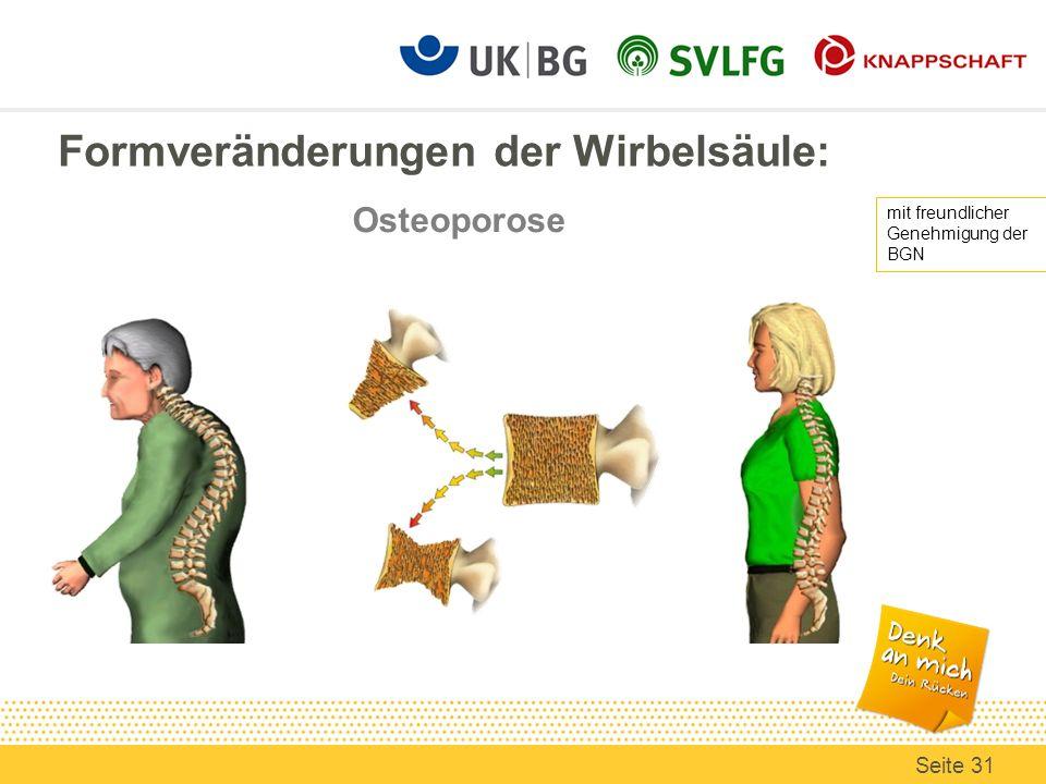 Formveränderungen der Wirbelsäule: mit freundlicher Genehmigung der BGN Seite 31 Osteoporose