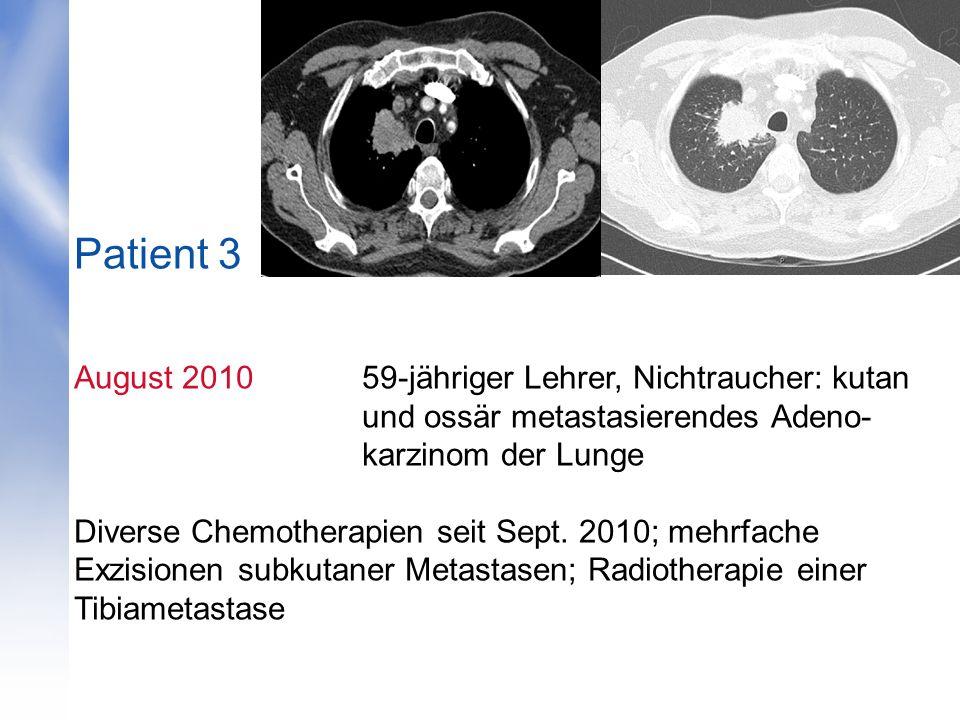 Patient 3 August 201059-jähriger Lehrer, Nichtraucher: kutan und ossär metastasierendes Adeno- karzinom der Lunge Diverse Chemotherapien seit Sept.