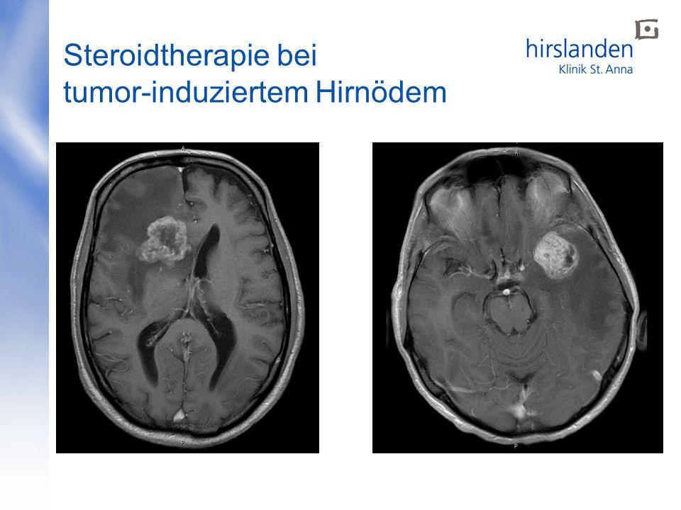 Steroidtherapie bei tumor-induziertem Hirnödem
