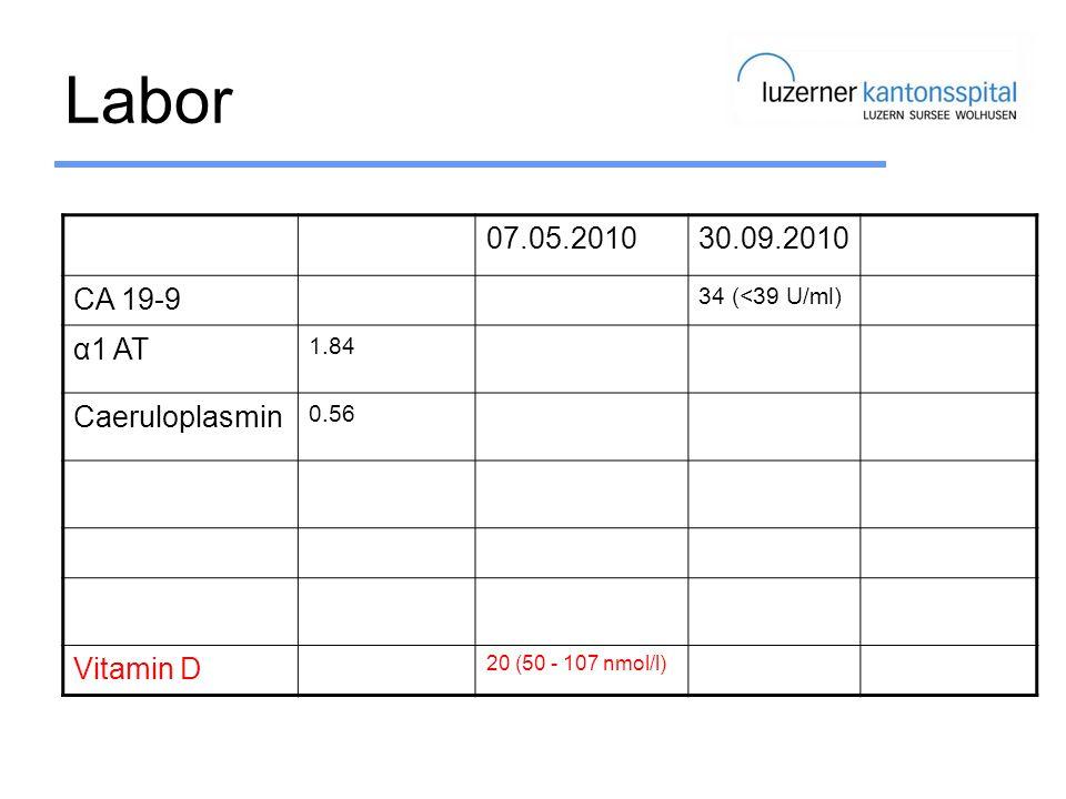 Labor 07.05.201030.09.2010 CA 19-9 34 (<39 U/ml) α1 AT 1.84 Caeruloplasmin 0.56 Vitamin D 20 (50 - 107 nmol/l)