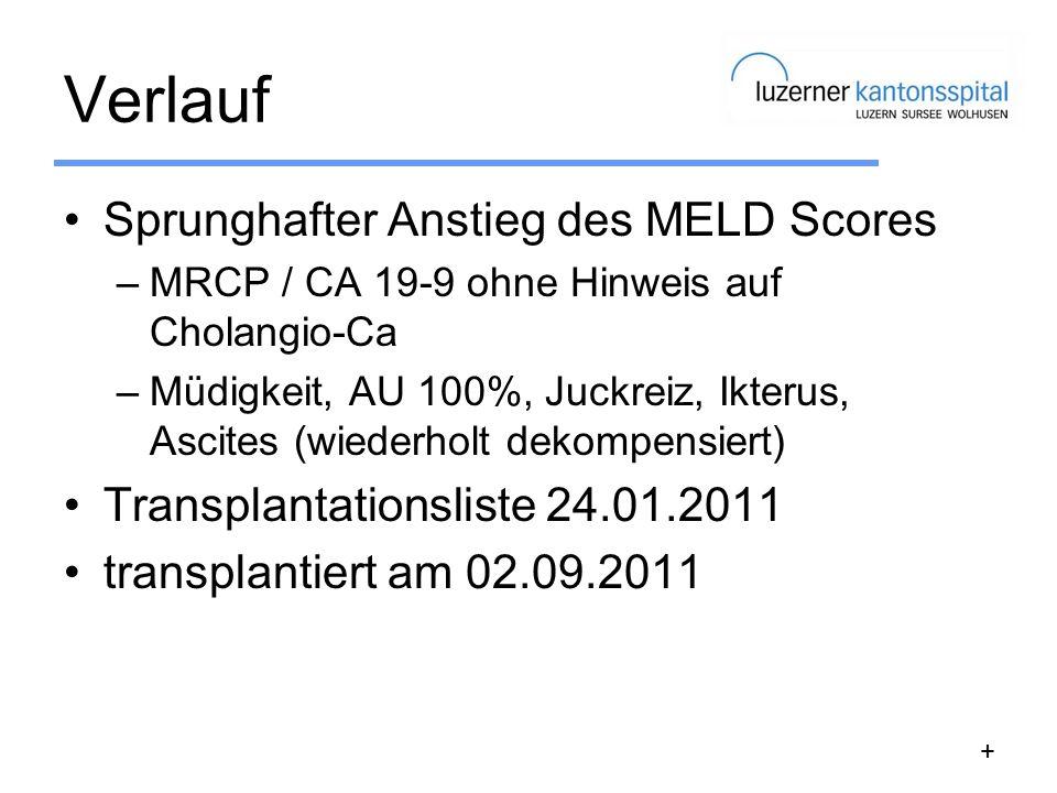 Verlauf Sprunghafter Anstieg des MELD Scores –MRCP / CA 19-9 ohne Hinweis auf Cholangio-Ca –Müdigkeit, AU 100%, Juckreiz, Ikterus, Ascites (wiederholt