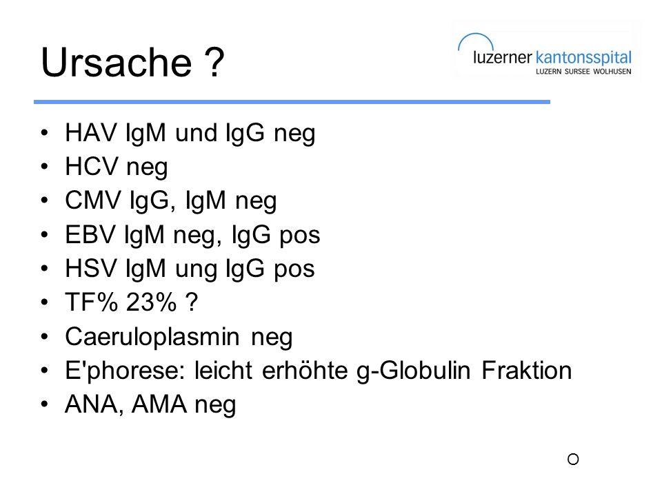 Ursache ? HAV IgM und IgG neg HCV neg CMV IgG, IgM neg EBV IgM neg, IgG pos HSV IgM ung IgG pos TF% 23% ? Caeruloplasmin neg E'phorese: leicht erhöhte