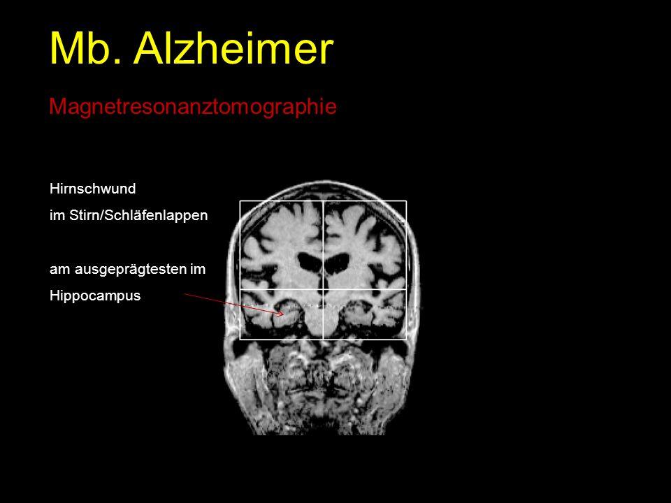Mb. Alzheimer Magnetresonanztomographie Hirnschwund im Stirn/Schläfenlappen am ausgeprägtesten im Hippocampus