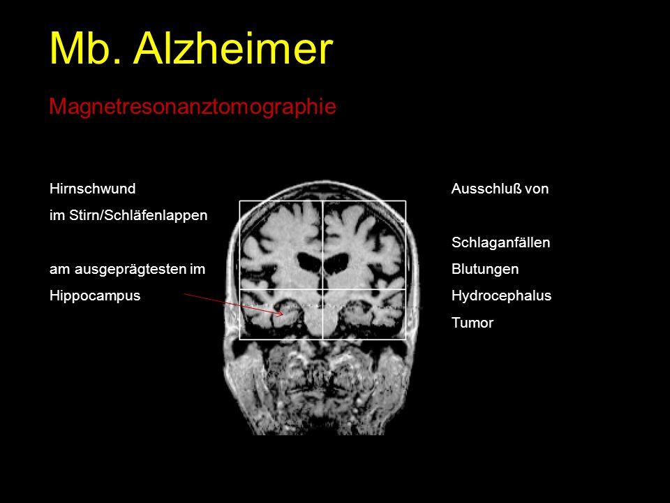 Mb. Alzheimer Magnetresonanztomographie Hirnschwund im Stirn/Schläfenlappen am ausgeprägtesten im Hippocampus Ausschluß von Schlaganfällen Blutungen H